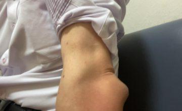 肘の滑液包炎